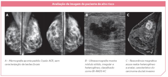 cancer mamar malign invaziv detoxifierea organismului de medicamente