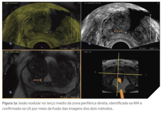 cancer de prostata ultrassonografia)